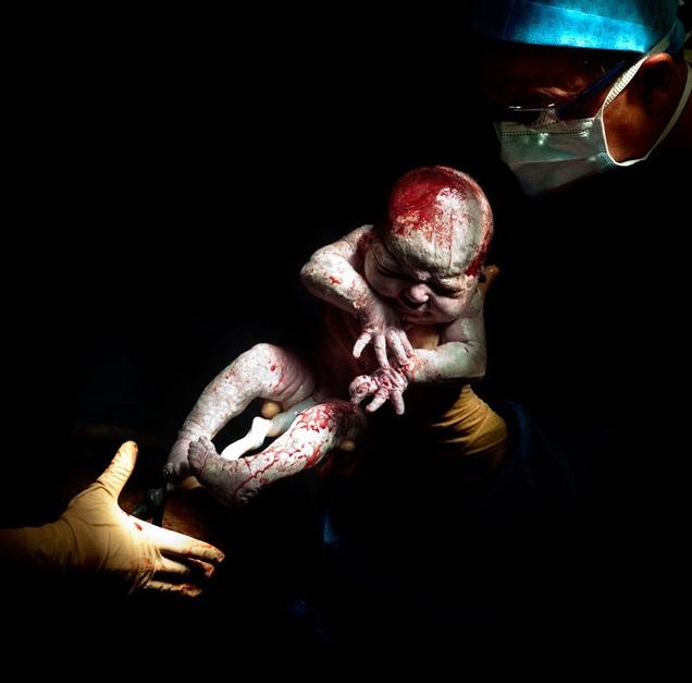 bebes naissances photos louann