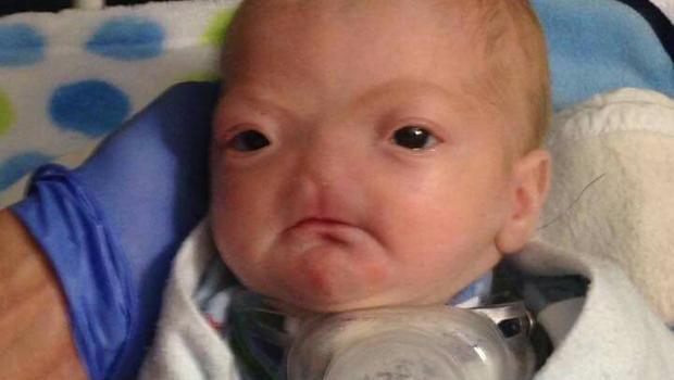 bebe ne sans nez