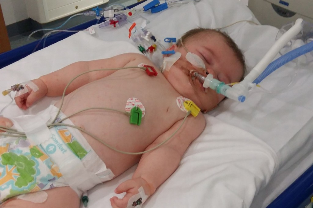 jenson baldwin a lhopital pour soigner sa meningite