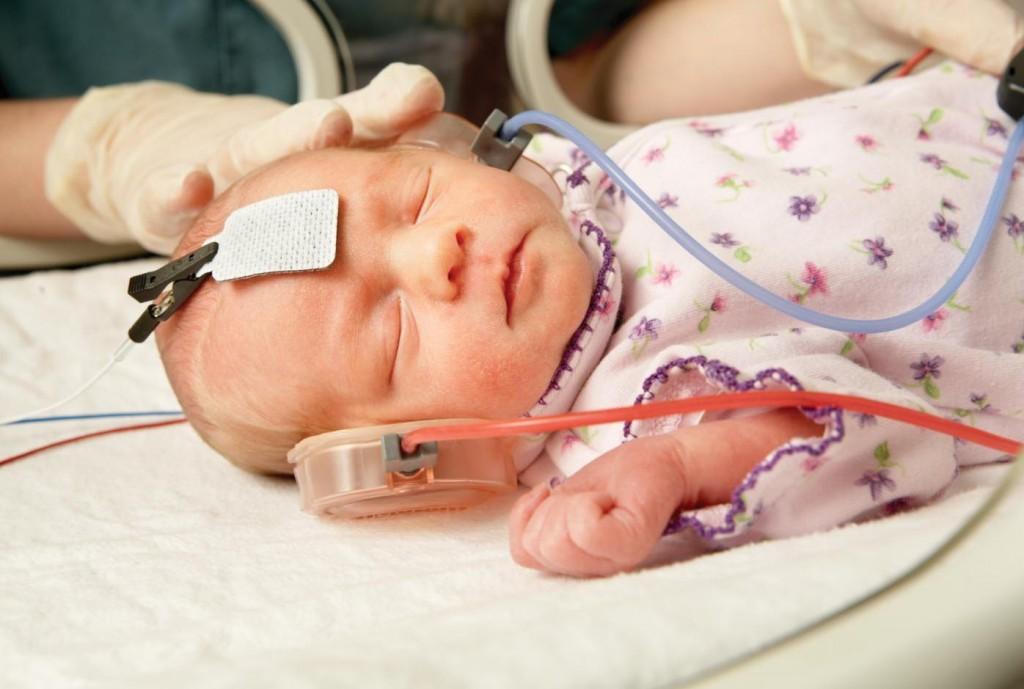 Dépistage néonatal de la surdité : pourquoi est-ce ...