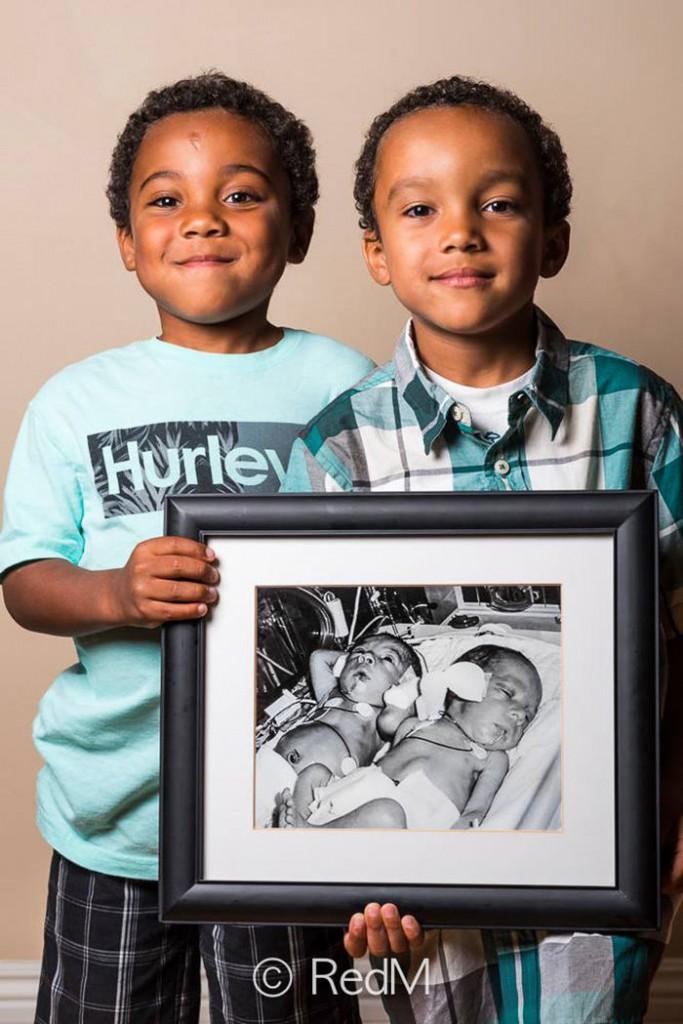 Noah et Nathan nés à 32 semaines