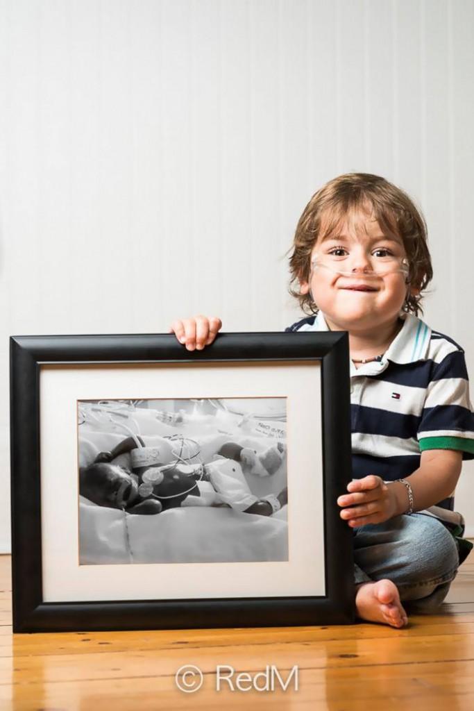 Thomas né à 23 semaines
