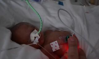 ambre bebe premature 2
