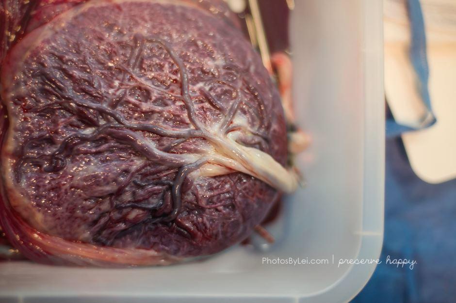 Leilani-Rogers-photographe-accouchement-placenta