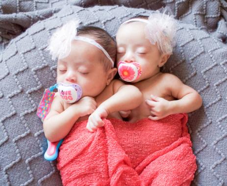 jumelles ensemble photos laura duggleby trisomie