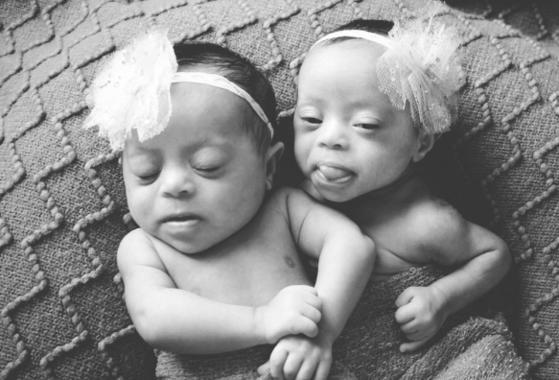 noir et blanc jumelles photo laura duggleby