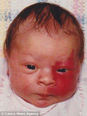 paige billot tache de naissance quand est bebe