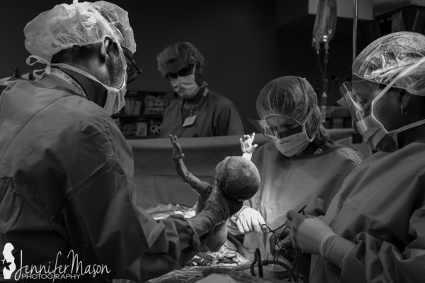 sortie du bebe pendant cesarienne etats unis