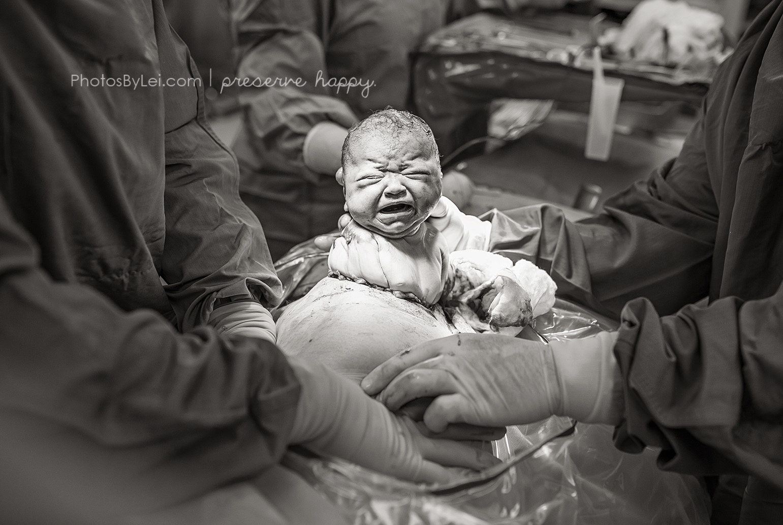 bebe cesarienne photo