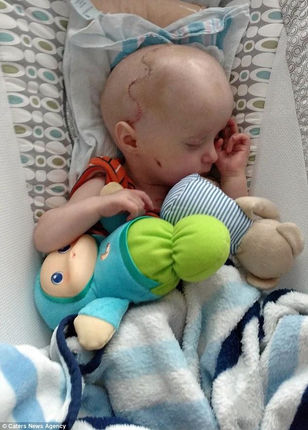 bebe-operation-craniosthenose-refaire-cerveau