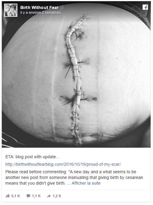 elle prouve par cette photo que la cesarienne est un vrai accouchement facebook