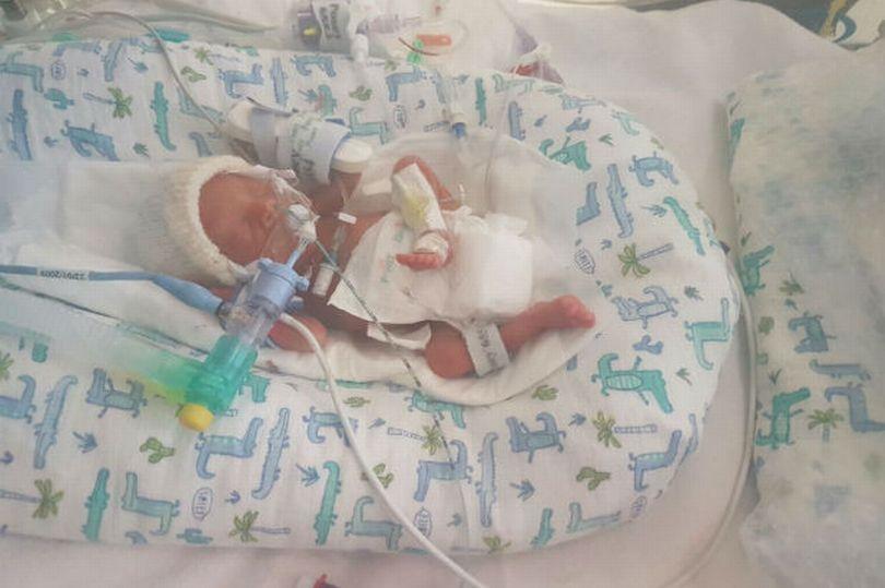 ne 17 semaines avant le terme ce bebe miracle rentrera chez lui a temps pour feter noel