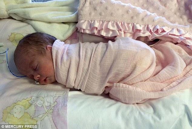 bebe-ne-gastroschisis-intestins-en-dehors-du-corps-bebe