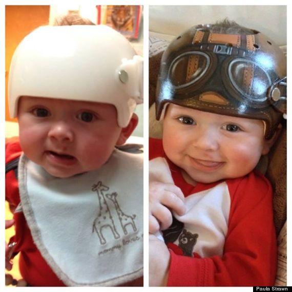 paula-strawn-artiste-bebe-syndrome-tete-plate-peint-casque-1