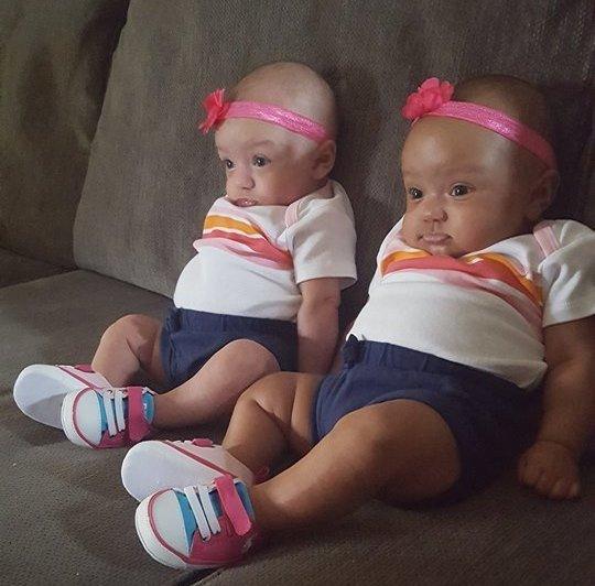 bebe jumeaux pas la meme couleur de peau