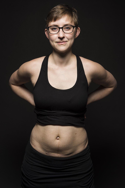 photo-femme-cicatrice-cesarienne-6