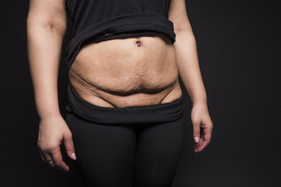 photo-femme-cicatrice-cesarienne-8