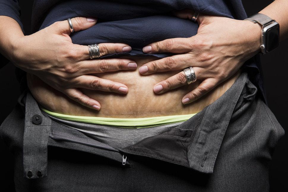 photo-femme-cicatrice-cesarienne-9