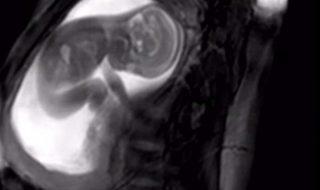 Cette nouvelle technique d'IRM serait-elle en passe de détrôner la classique échographie ?