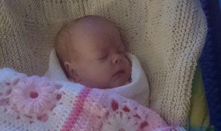 Ce bébé ne pesant que 500 grammes à la naissance survit à une très lourde opération chirurgicale