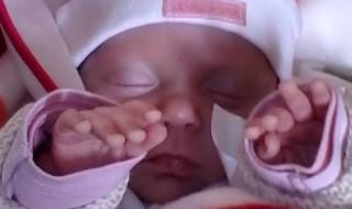 Mon bébé est né grand prématuré