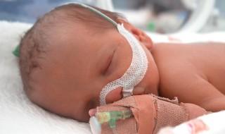 Un couple demande de stopper les soins de leur nourrisson né grand prématuré