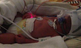 Comment j'ai vécu la naissance prématurée de mon bébé sans son père