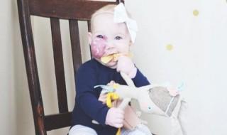 Sa fille a un hémangiome capillaire sur le visage et alors ?