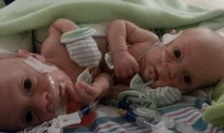Des jumeaux siamois survivent à leur première intervention chirurgicale