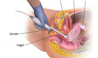 échographie endovaginale