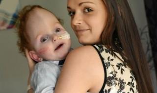 Né avec un cerveau atrophié, il dit «Maman» et bouleverse sa mère