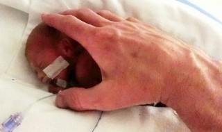 Né à 25 semaines, un grand prématuré est sauvé grâce à beaucoup d'amour
