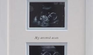 Une idée choupi pour conserver les échographies de bébé !