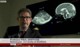 Quelle invention spectaculaire ce médecin a-t-il mis au point pour venir en aide aux bébés nés prématurés ?