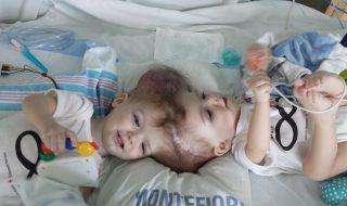 Reliés par la tête, ces jumeaux siamois ont été séparés avec succès !