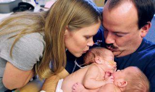 Reliées par le foie à la naissance, ces jumelles siamoises maintenant séparées fêtent leurs 2 ans !
