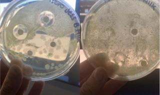 Une maman démontre que le lait maternel est capable de combattre de nombreuses bactéries