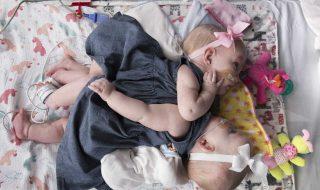Ces bébés siamois ont été séparés avec succès, les parents partagent des photos de l'opération