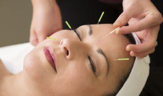 Pourquoi pratiquer l'acupuncture pendant la grossesse?